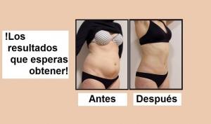 resultados de la abdominoplastia