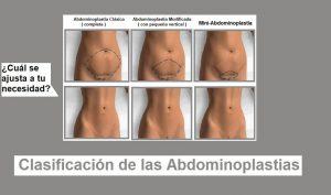 clasificación de la abdominoplastia